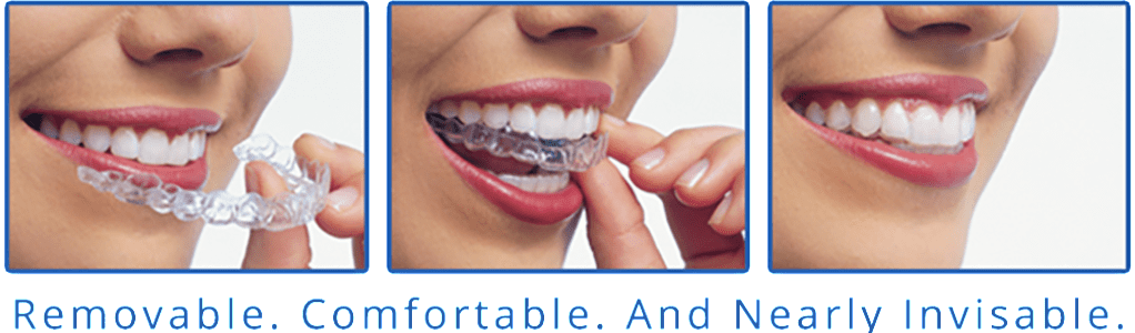 Invisalign Clear Braces, Carbonear Dentist